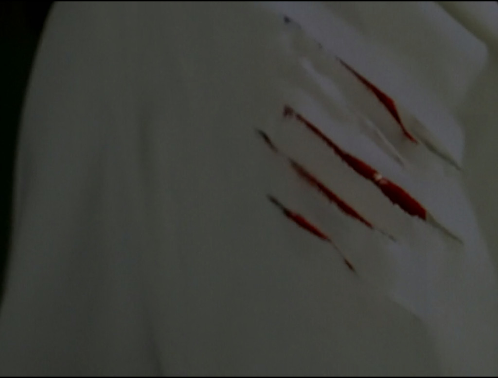 Dr. Backer's lab coat, with bloody claw marks through it.