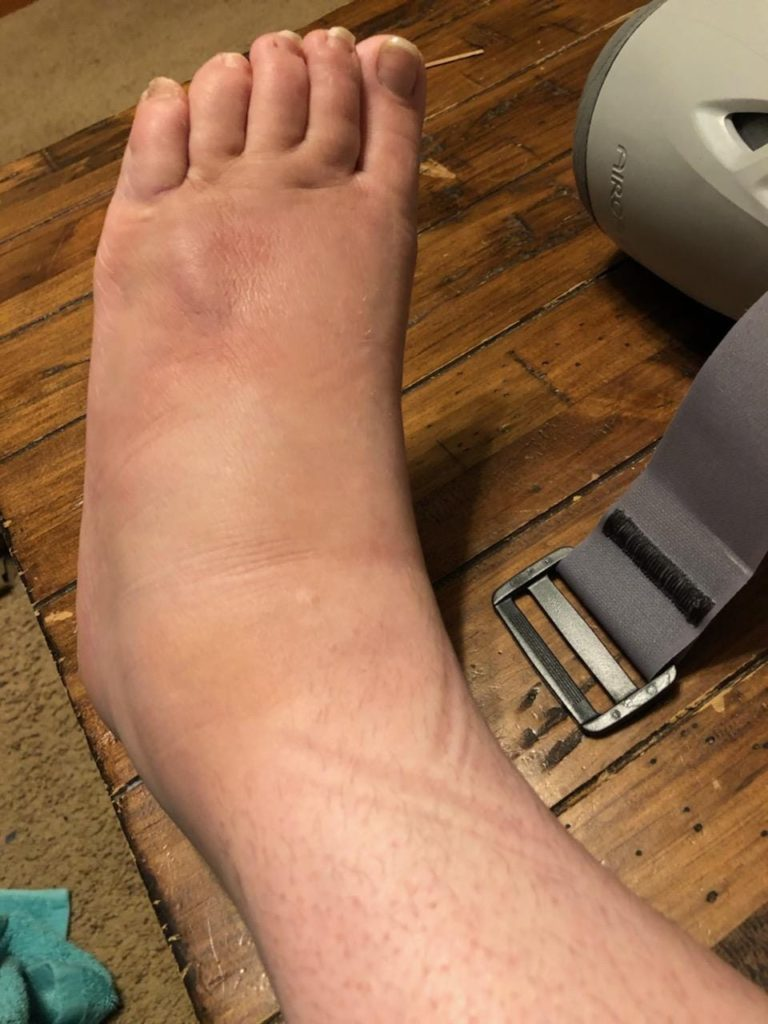 My foot, propped up on a wooden table with the air cast slightly in the photo. My foot is hugely swollen, bruised, and there's a weird lumpy sticking-up part about an inch below my fourth and fifth toe.