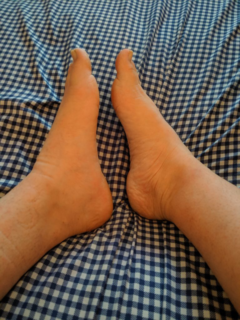 The size disparity between my injured foot and my uninjured foot is comical. The injured foot is huge, like it belongs on another person, both in length and width.